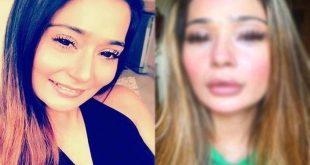 sara khan plastic surgery gone wrong